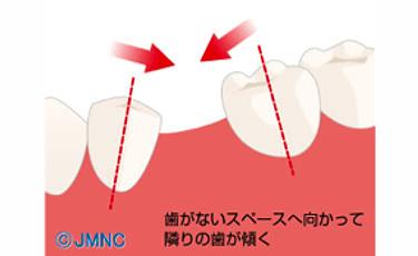 抜けてしまった歯のスペースに歯が傾く